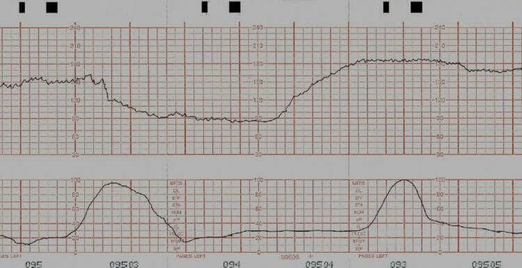 Pregnancy: Prolonged deceleration