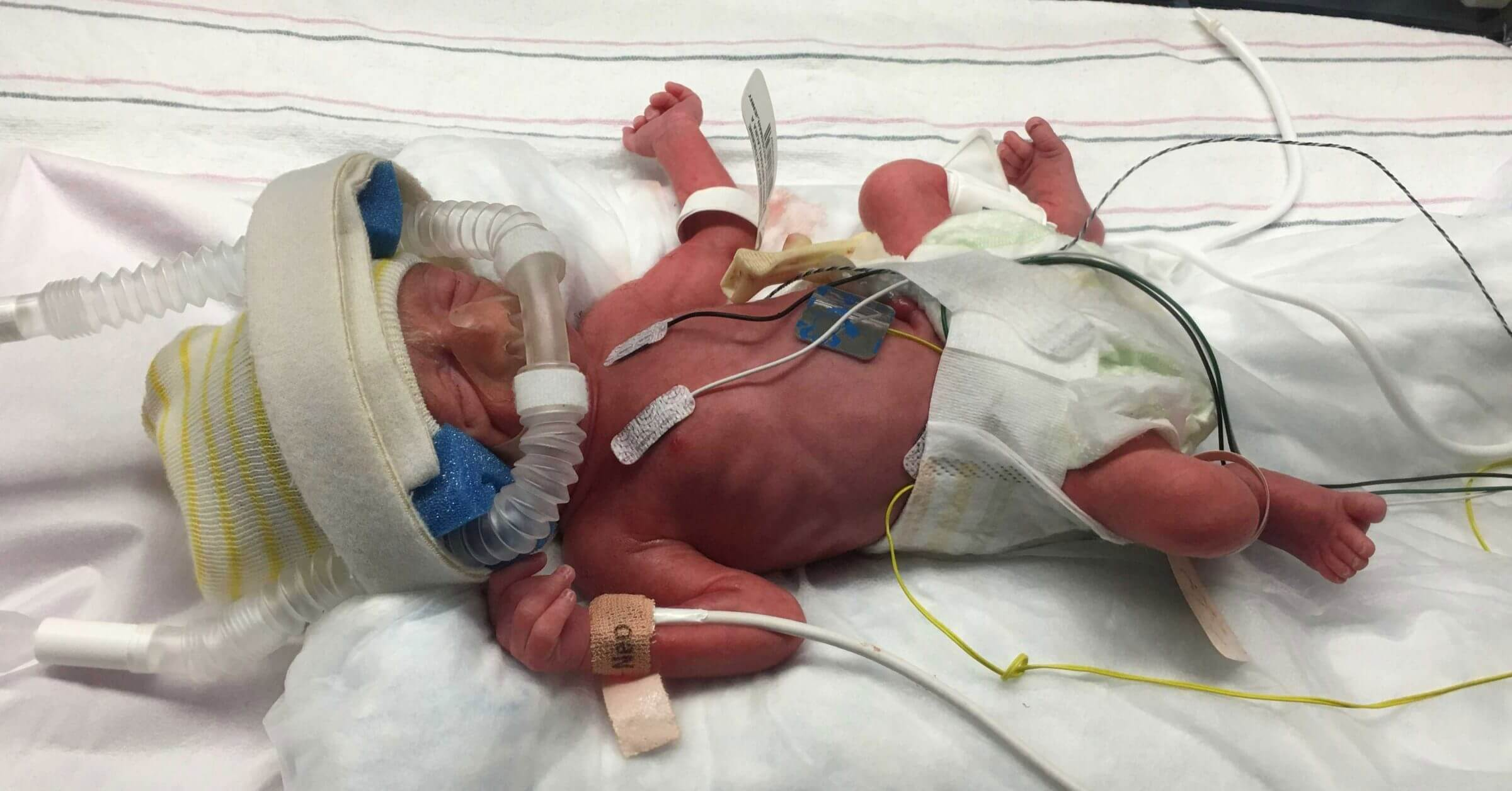 The journey of our preemie in the NICU of Northside Hospital