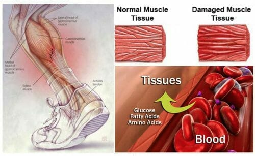 Damaged muscle tissue