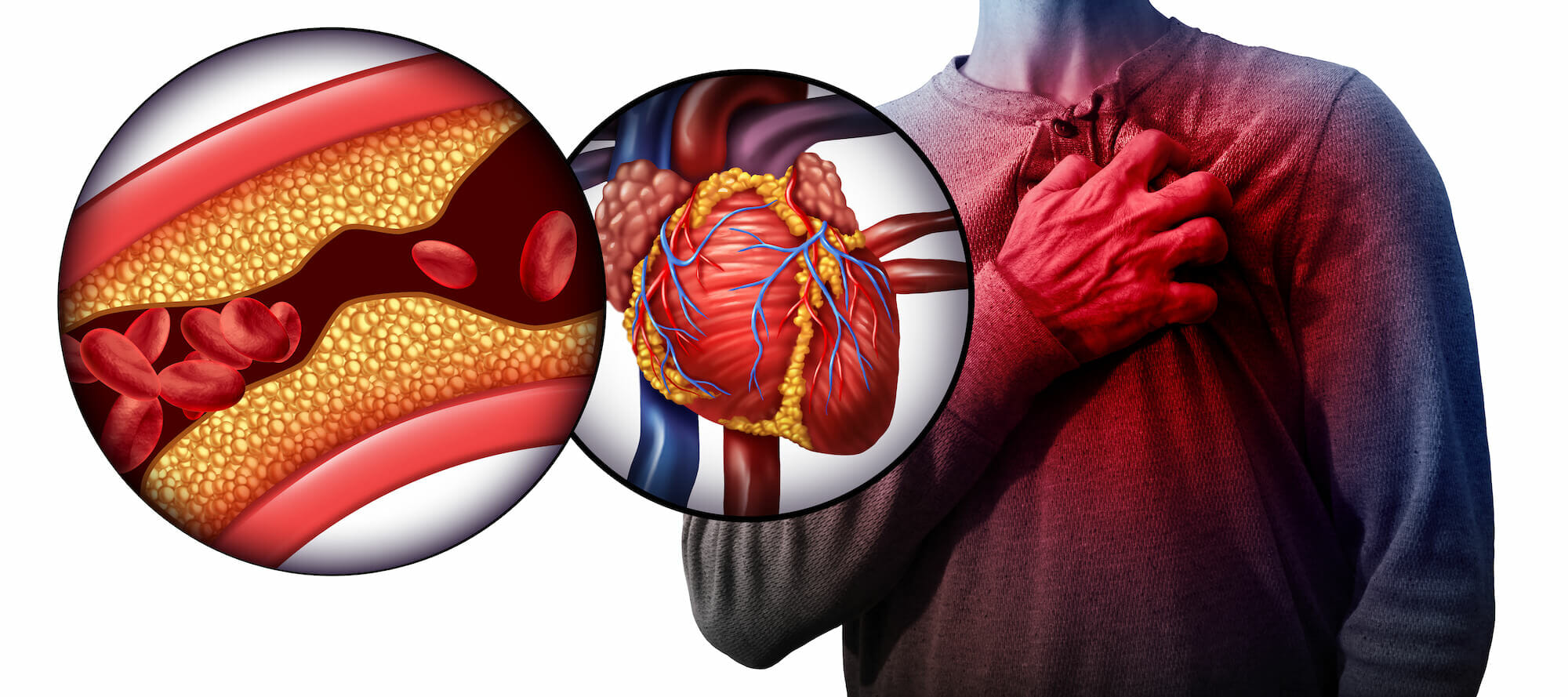 Myocardial,Infarction,As,A,Person,Suffering From A Heart Attack