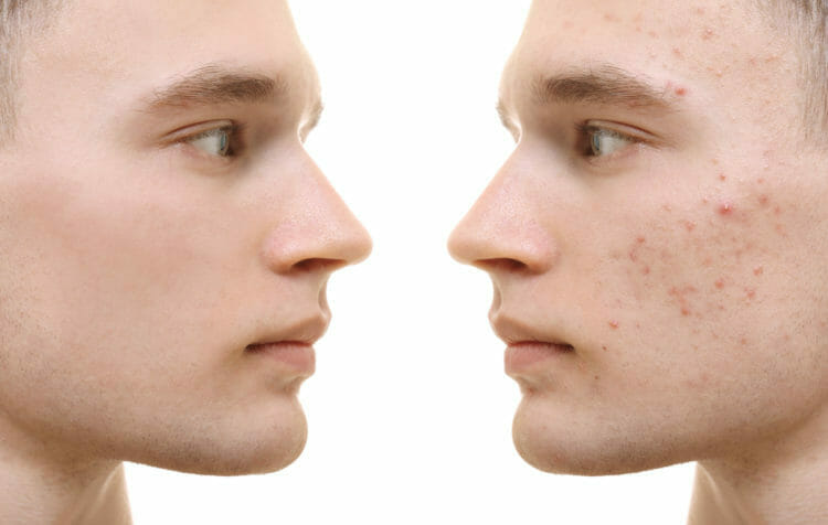 Keto can reduce or treat acne