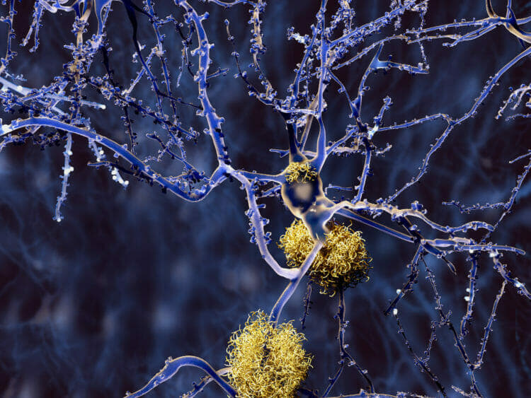 Keto can Prevent Alzheimer's And Other Mental Diseases