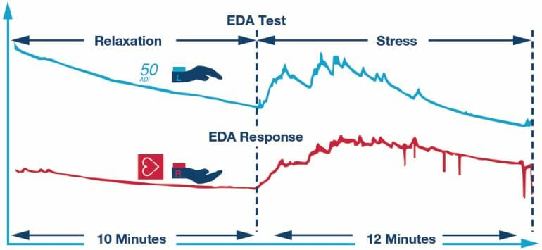 Changes in electrodermal activity and heart rate in response to music