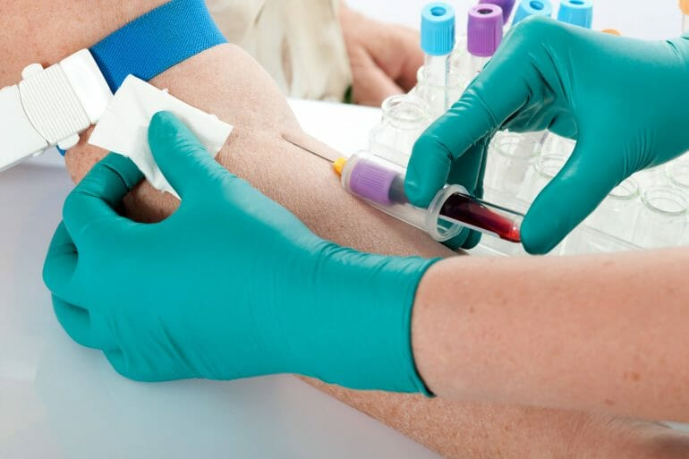 Venous ketone blood test