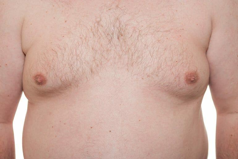 A photo of estrogen-induced man boobs.