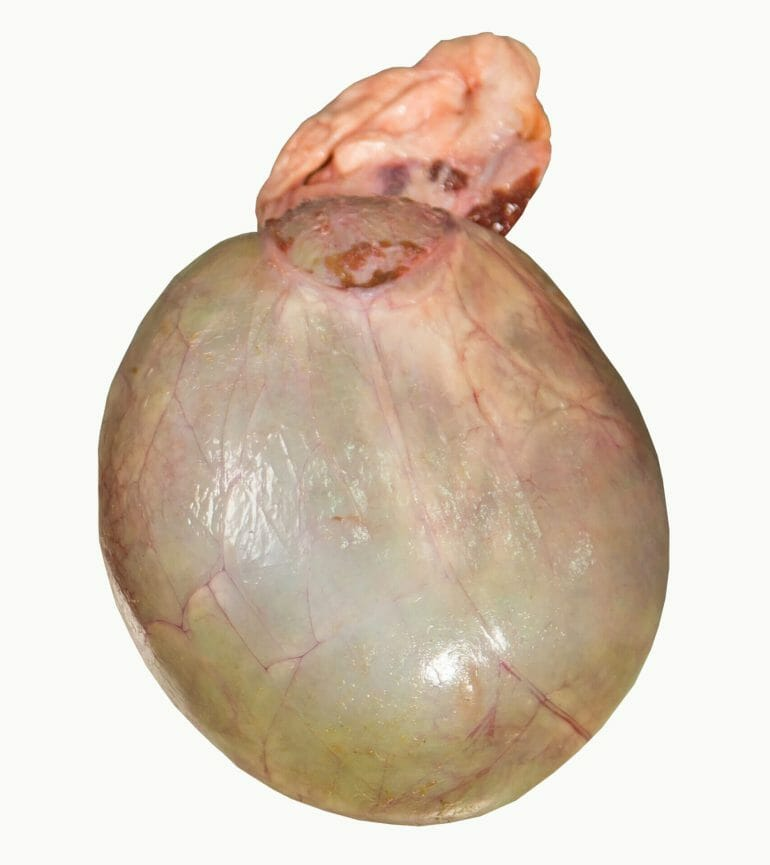 A picture of beef gallbladder.