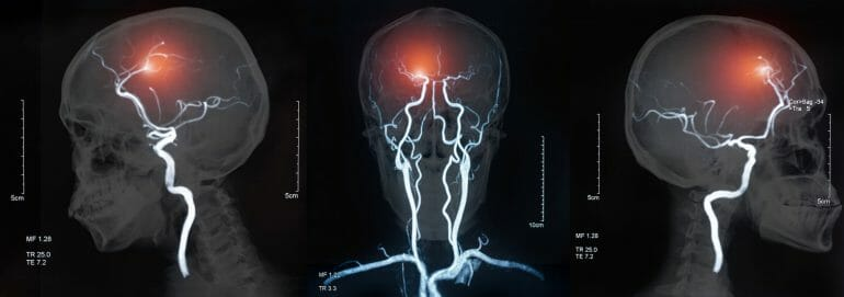 A stroke occurs when the blood supply to part of your brain is interrupted or reduced, preventing brain tissue from getting oxygen and nutrients.